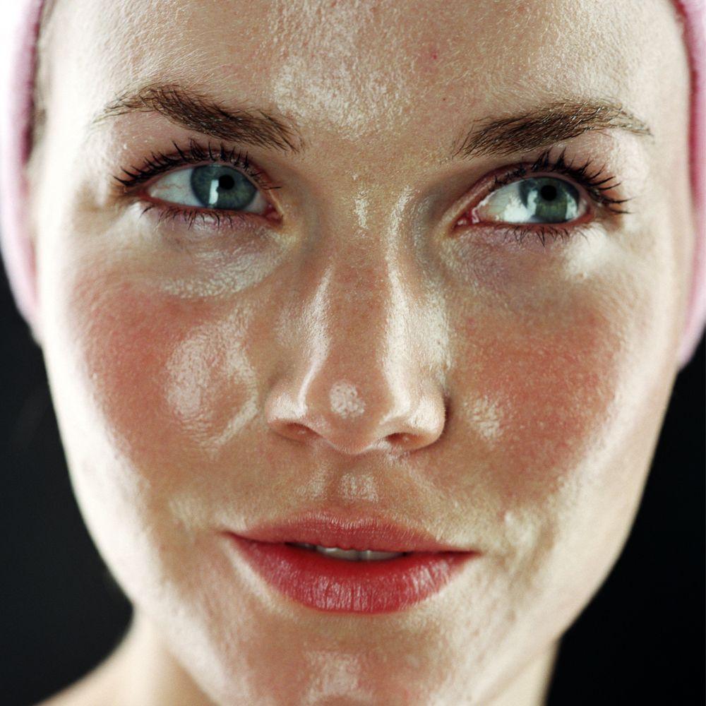 Bildresultat för oily face