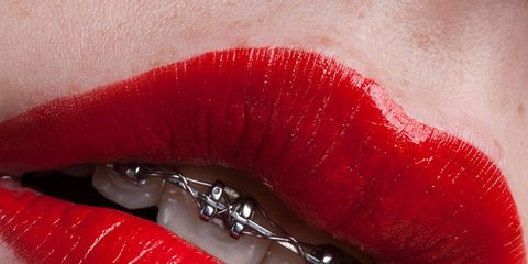 Christmas Braces Ideas.Everything You Need To Know About Adult Braces