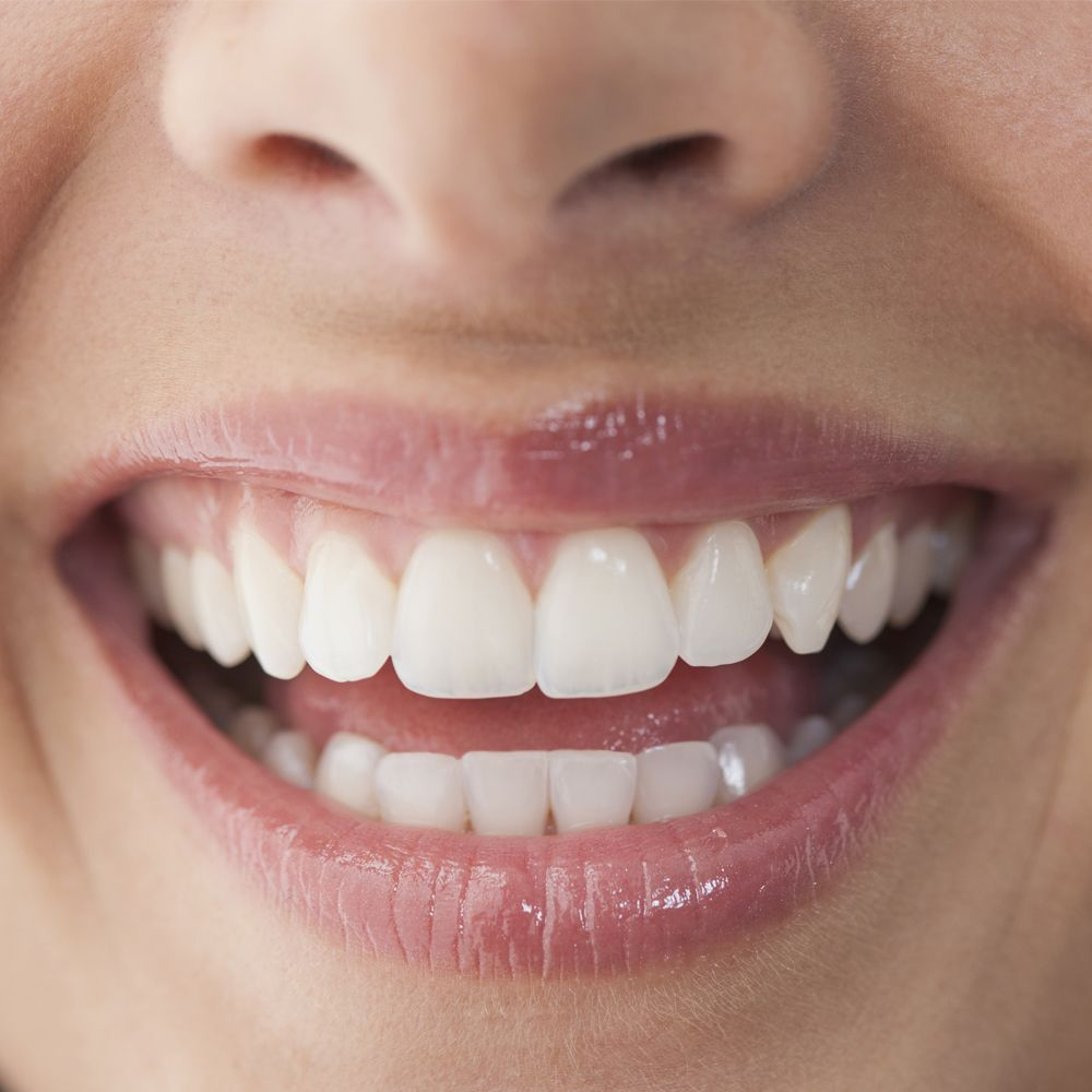 14 Tips From Dentists To Whitening Your Teeth Without Treatment