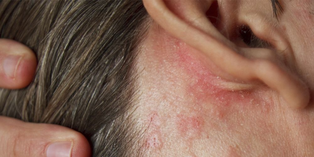 What Is Psoriasis Causes Symptoms And Treatment