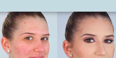 Ear, Lip, Cheek, Brown, Hairstyle, Skin, Chin, Forehead, Eyelash, Eyebrow,
