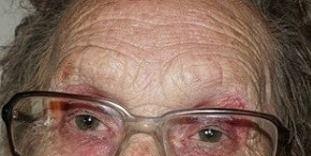 Eyewear, Glasses, Vision care, Lip, Cheek, Skin, Hairstyle, Chin, Forehead, Eyebrow,