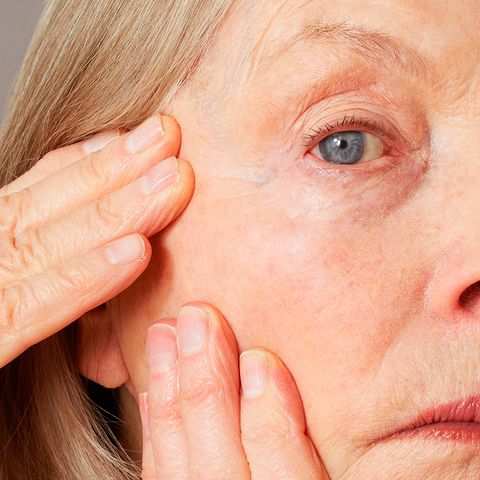 How To Get Rid Of Eye Wrinkles Is Surgery The Only Option