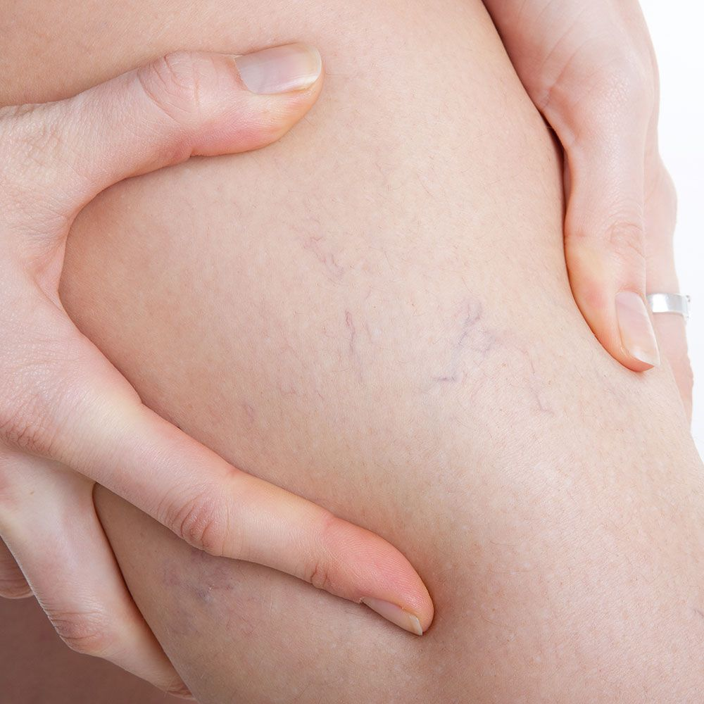Everything you need to know about thread veins - Symptoms, causes, cure, treatment