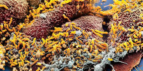 Yellow, Orange, Coral, Algae,