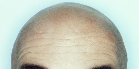 Eyebrow, Face, Forehead, Hair, Eye, Skin, Head, Eyelash, Close-up, Nose,
