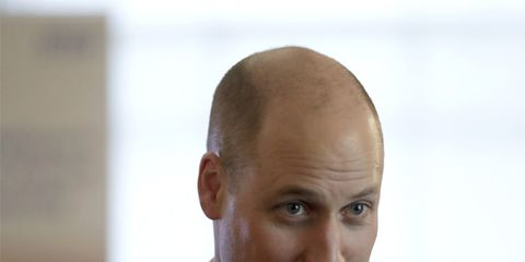 Hair, Face, Forehead, Head, Eyebrow, Suit, Hairstyle, Chin, Nose, White-collar worker,