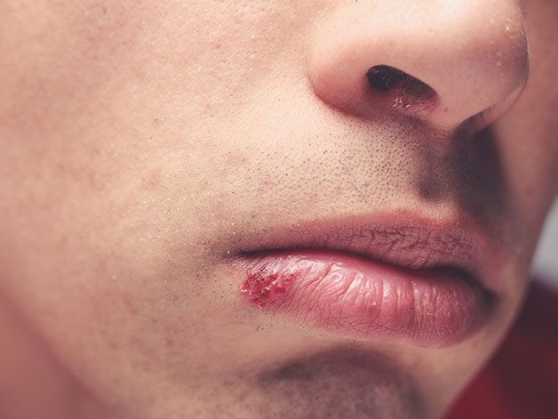 Cold Sores: The causes and 9 easy ways to treat them fast