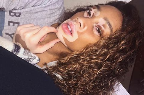 Hair, Face, Lip, Eyebrow, Facial expression, Skin, Beauty, Nose, Chin, Forehead,