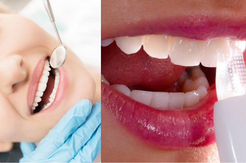 Tooth, Lip, Jaw, Mouth, Skin, Facial expression, Smile, Organ, Chin, Cosmetic dentistry,
