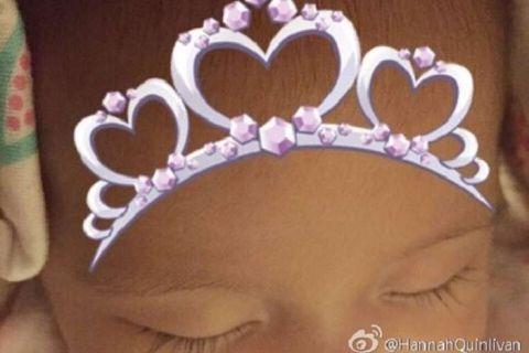 Cheek, Brown, Skin, Forehead, Eyebrow, Facial expression, Hair accessory, Headgear, Organ, Eyelash,