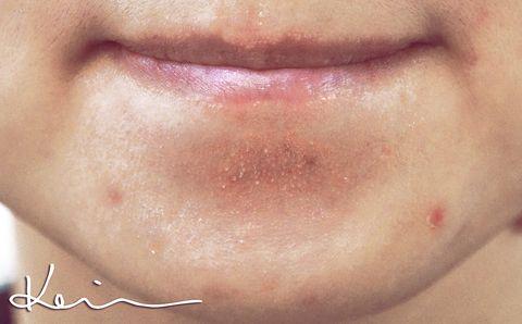 Lip, Cheek, Skin, Chin, Forehead, Eyebrow, Jaw, Organ, Eyelash, Neck,