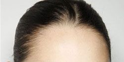 Face, Head, Nose, Lip, Cheek, Brown, Hairstyle, Skin, Chin, Earrings,
