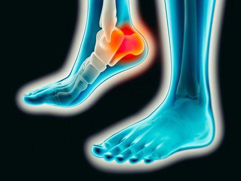 e77e1e7e0a Plantar fasciitis - the causes, symptoms and stretches to help recovery