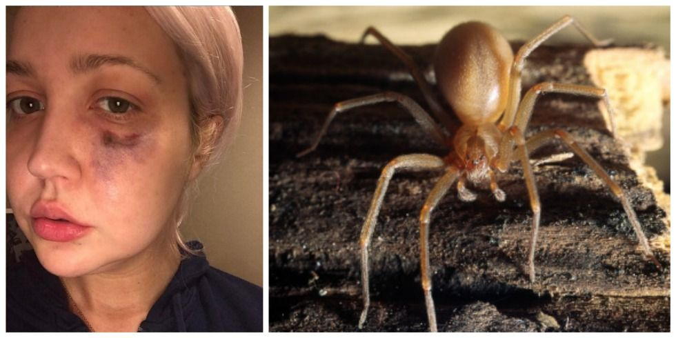 brown recluse spider bite facts meghan linsey bitten by poisonous