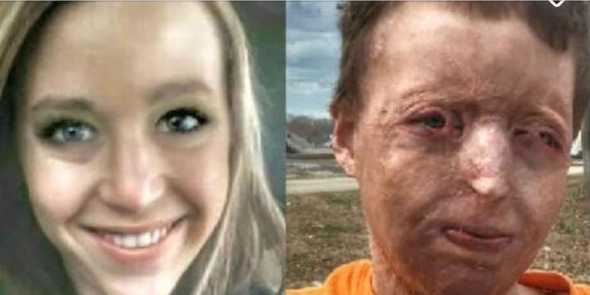 Georgia Mom Speaks Out After Disfiguring Campfire Accident