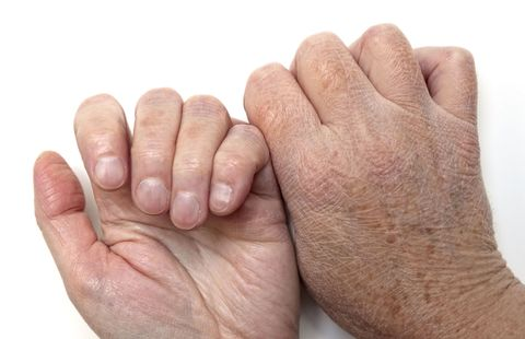 Skin, Finger, Hand, Nail, Gesture, Joint, Wrinkle, Close-up, Thumb, Flesh,
