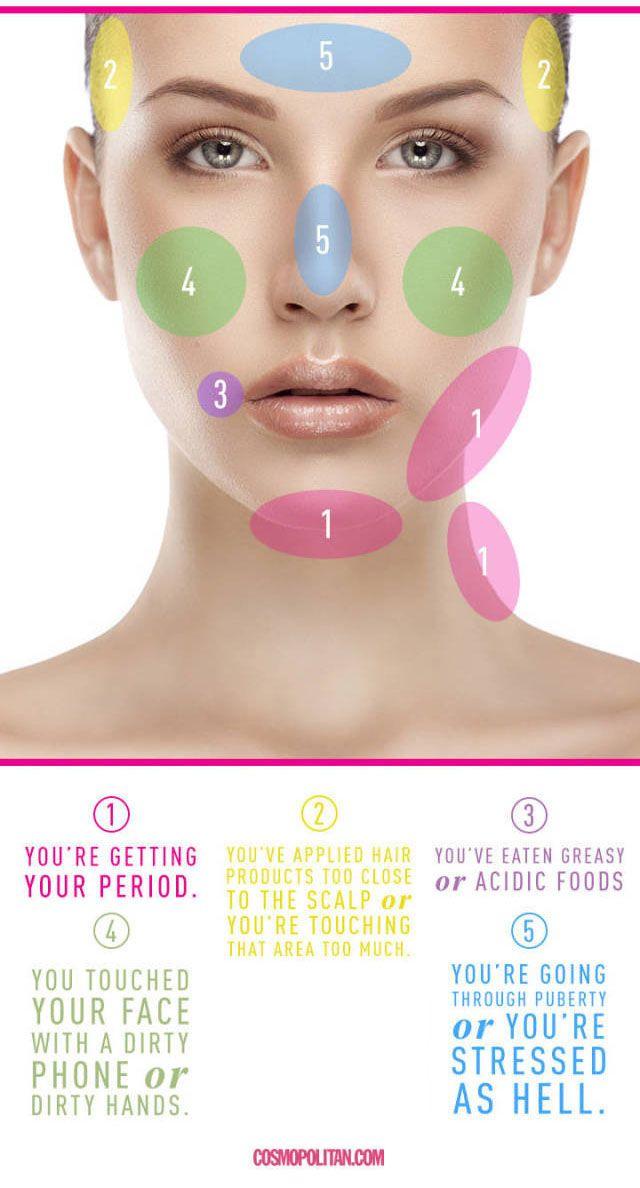 acne oorzaak
