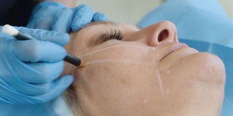 Skin, Jaw, Medical glove, Organ, Tooth, Service, Medical procedure, Medical, Dentistry, Safety glove,