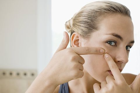 What Your Pimples Say About Your Health