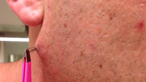 watch this man pull out the world s longest ingrown hair and try not