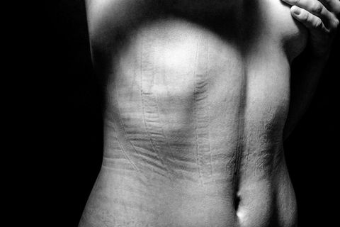 Skin, Joint, Monochrome, Wrist, Monochrome photography, Black-and-white, Muscle, Flesh,