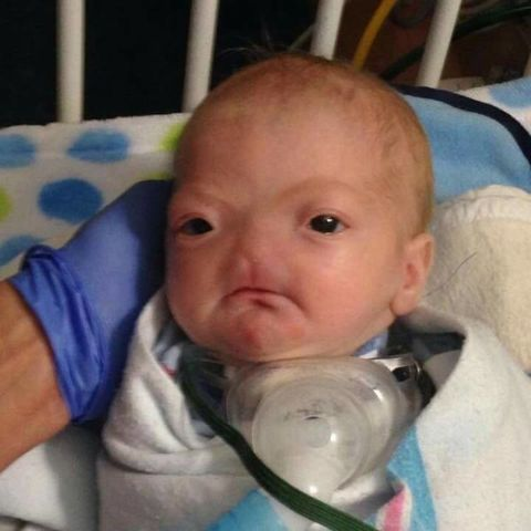 Meet the Miracle Baby Born Without a Nose