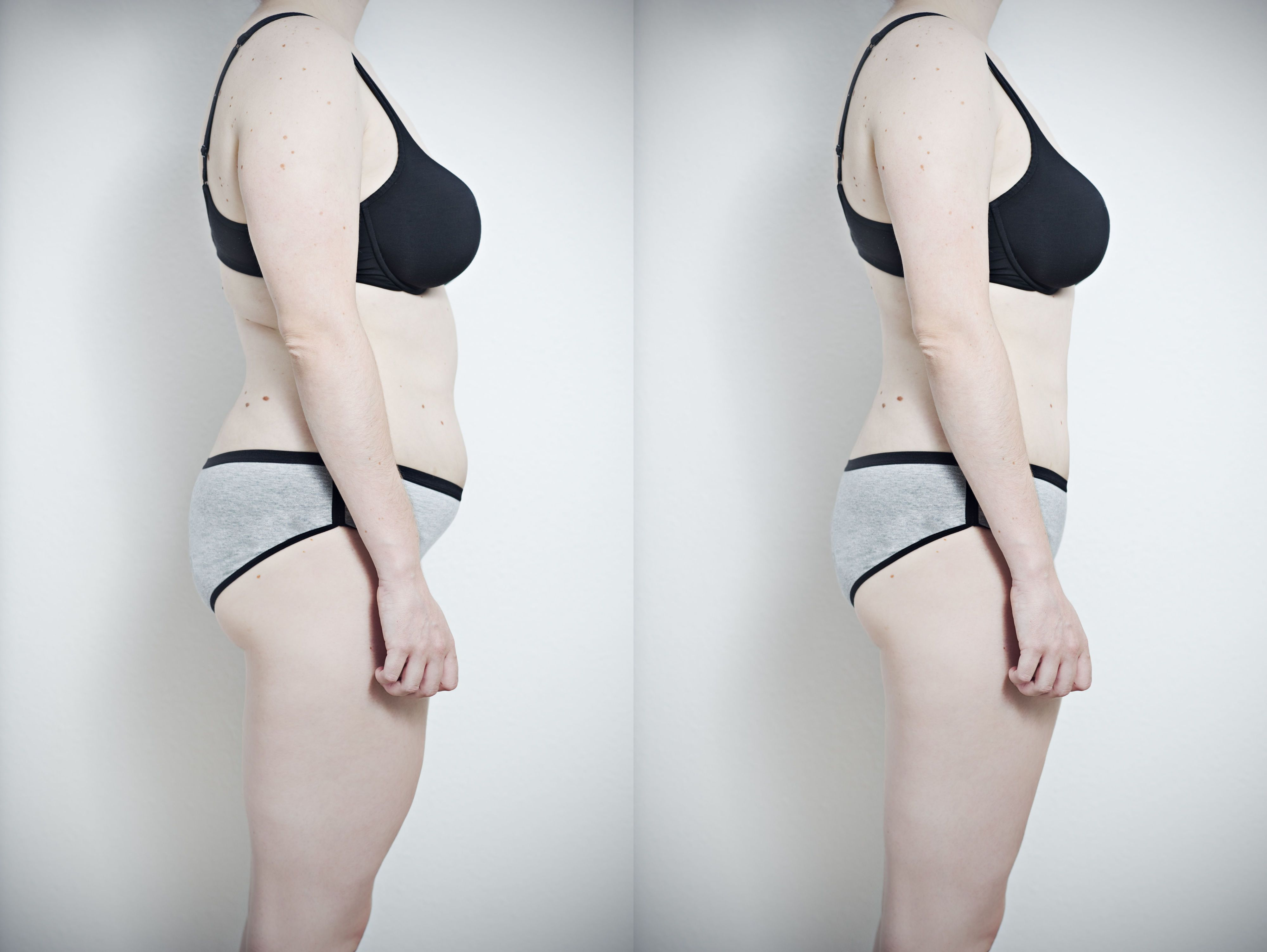 do you lose weight when bulimic