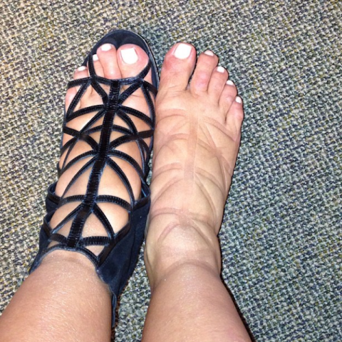 fd70bcca7d013 Gladiator Sandals Could Be Permanently Damaging Your Legs
