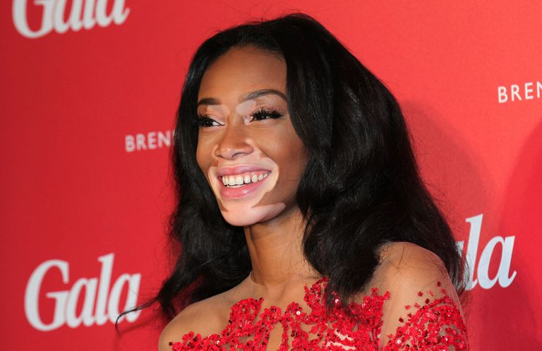 Model Chantelle Winnie Remembers Getting Beat Up Because of Her Skin Condition
