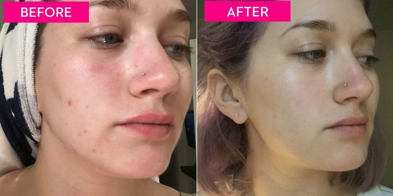 I Gave Up Popping My Pimples for a Week — and Here's What Happened