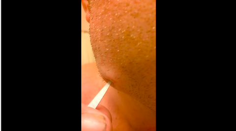 Watch This Man Pop His Own Tooth Infection and Never Sleep Again