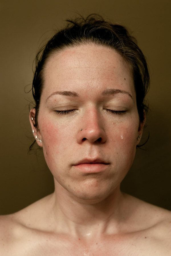 Woman's Honest Portraits Show What Major Weight Loss Really Looks Like