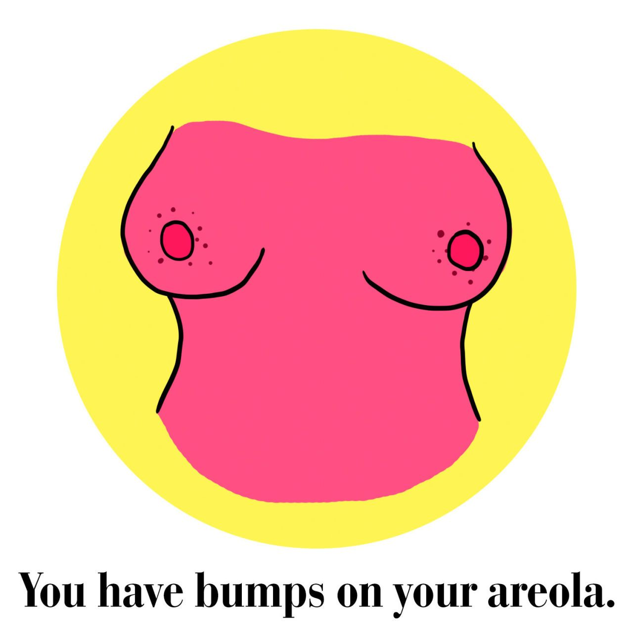 My Areolas Are Huge