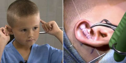 "6-Year-Old Gets Plastic Surgery After Being Bullied for Having ""Elf Ears"""