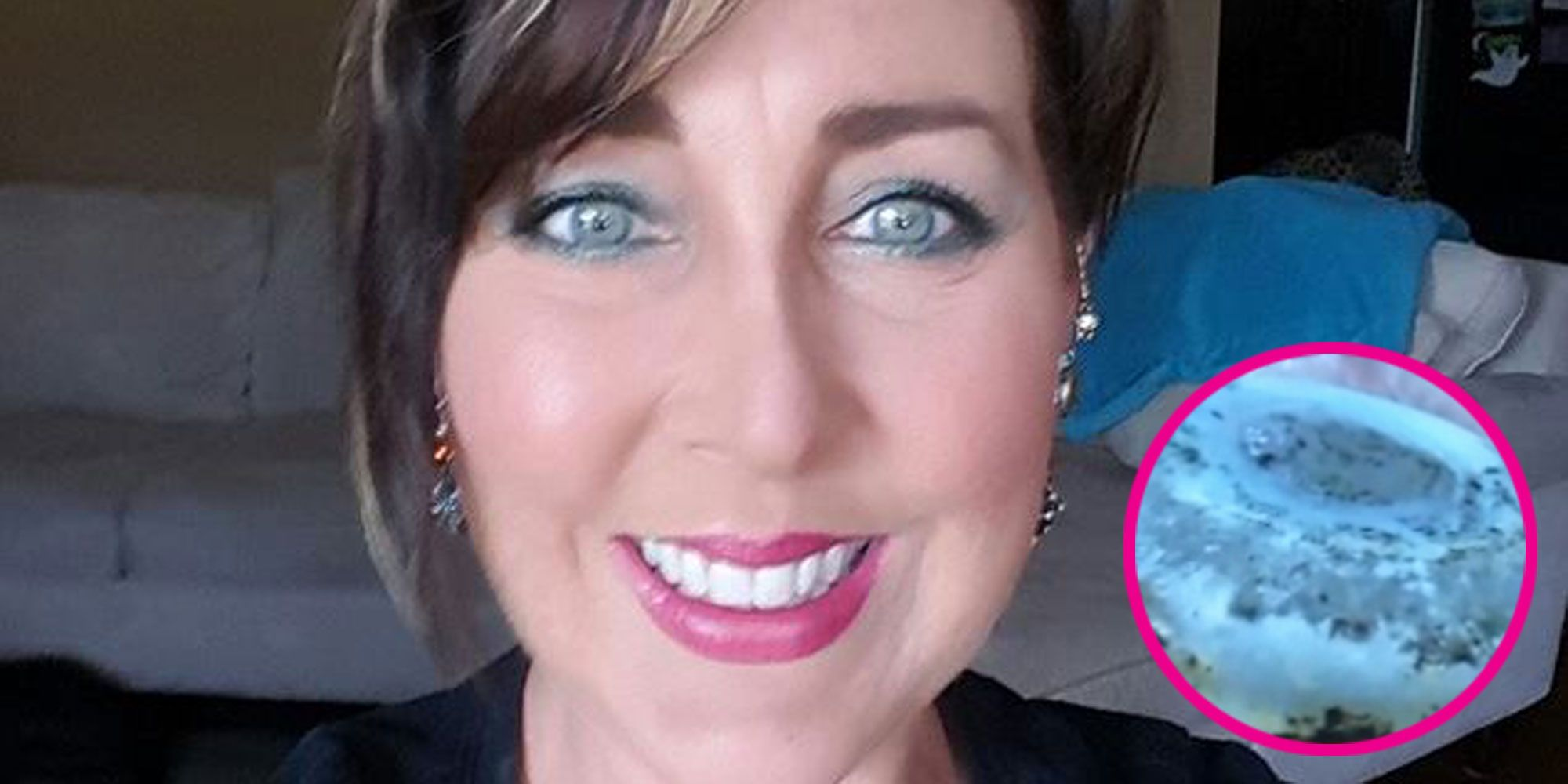 What Doctors Found in This Woman's Breast Implant Will Terrify You Forever