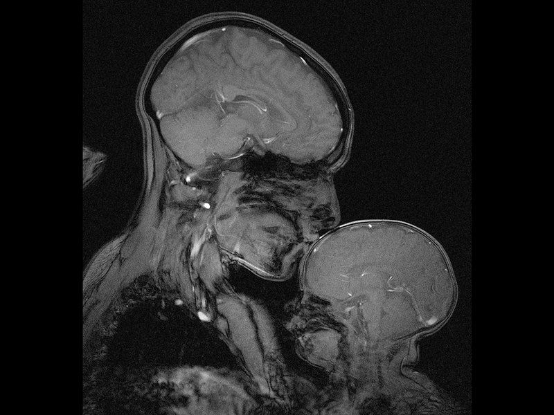 This Stunning Brain Scan Shows the Powerful Bond Between a Mother and Child