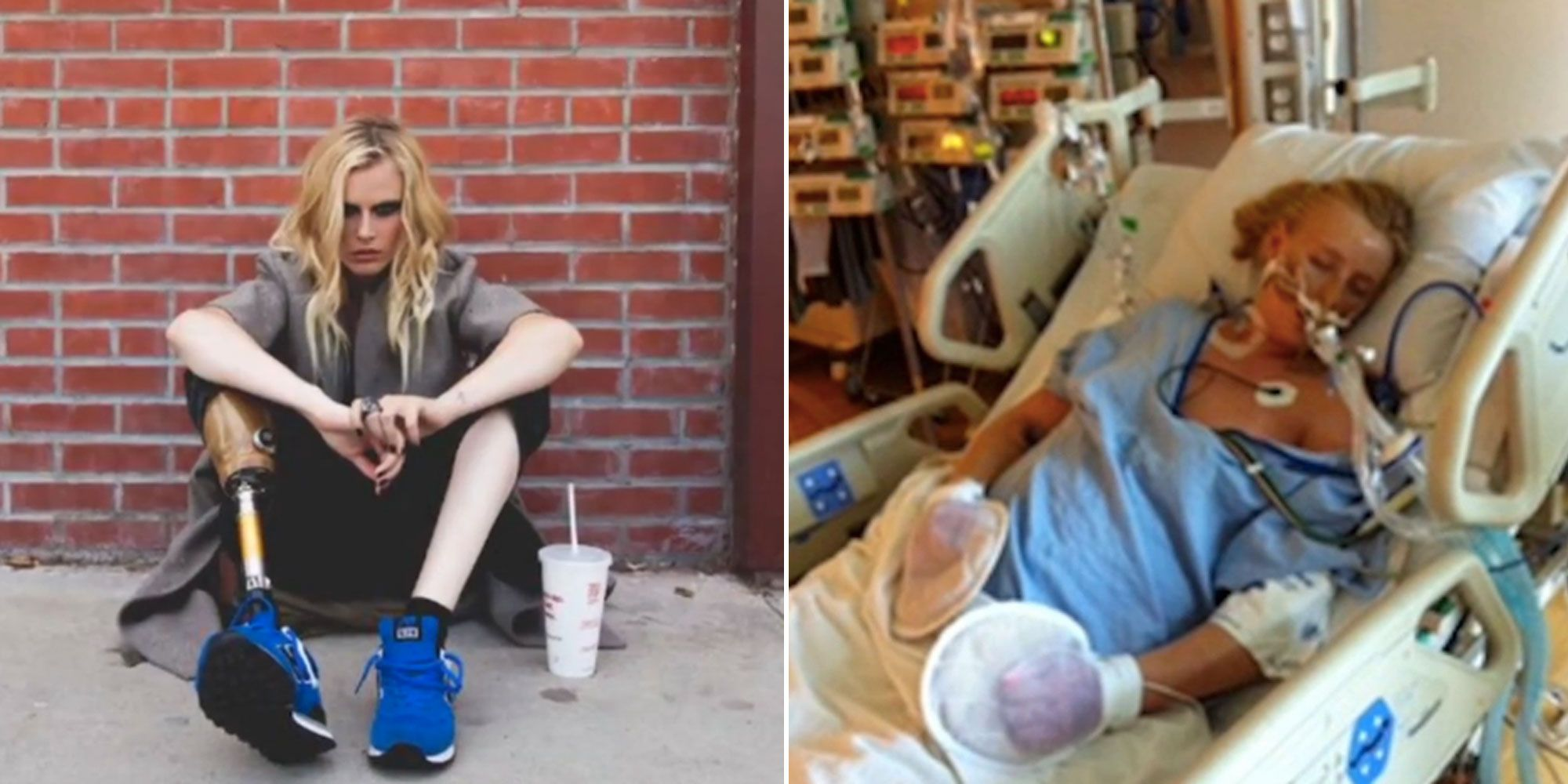 24-year-old model lost her leg because of tampons: I was 10 minutes from death
