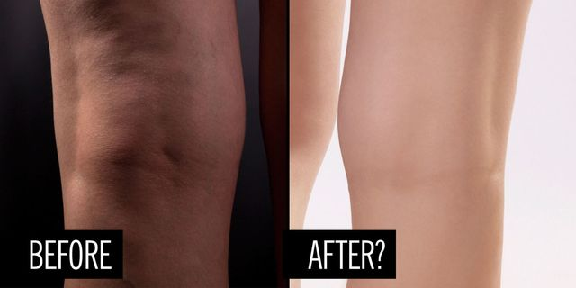 People Are Saying This Secret Supplement Smooths Cellulite