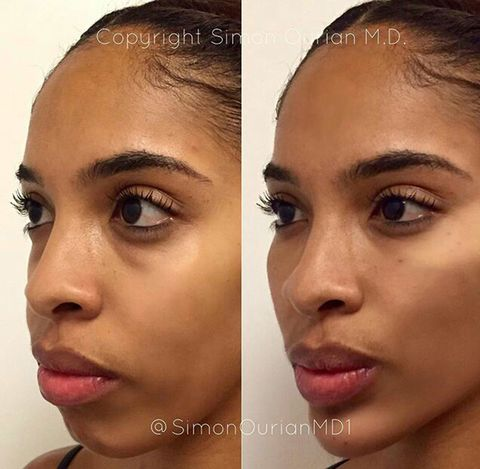How This Plastic Surgeon Can Give You a New Chin in 5 Minutes