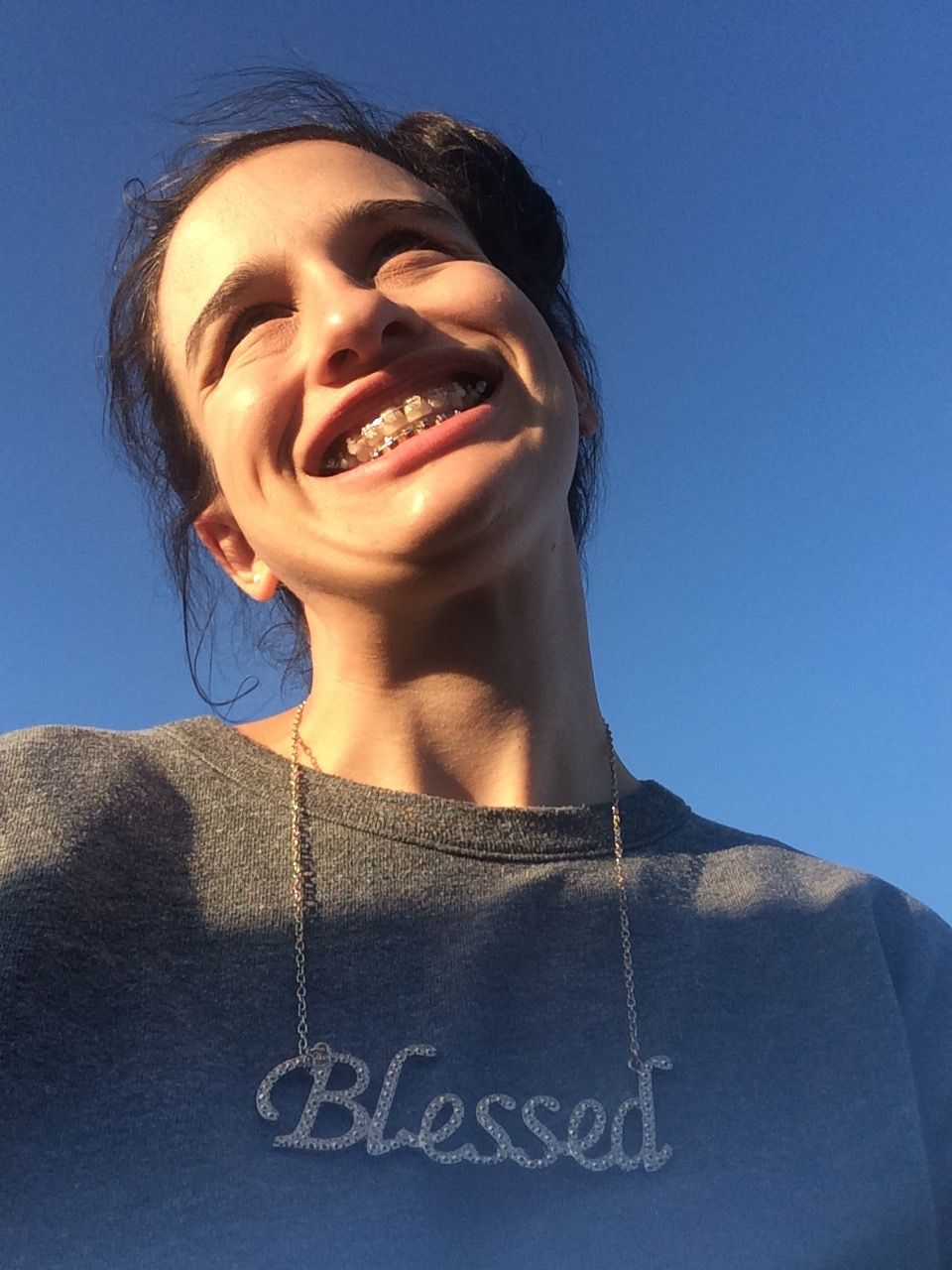 What Getting Braces at 28 Taught Me About Life