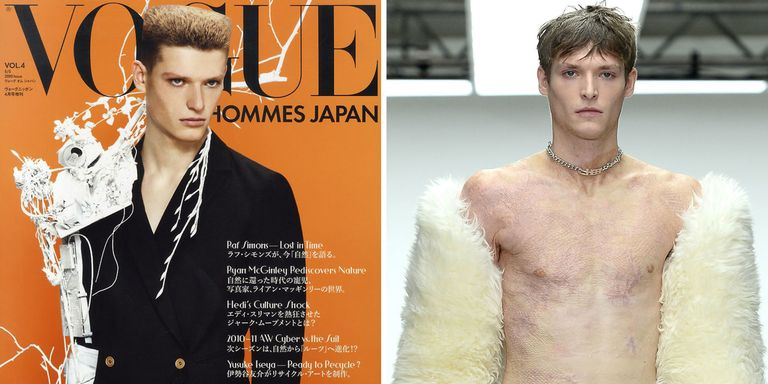 90 Percent of This Model's Body Was Burned, but He Kept Working