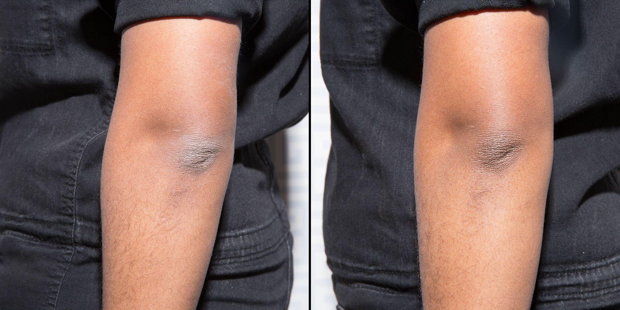 6 No-Fail Ways to Avoid Ashy Skin