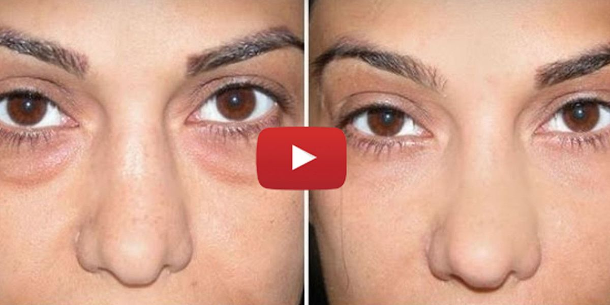 Actually, Using Baking Soda to Get Rid of Your Undereye Circles Is ...