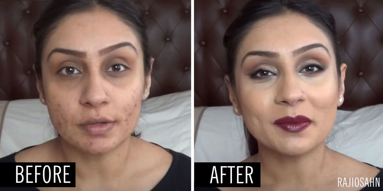 The 30 Best Concealers That Will Completely Cover Your Acne