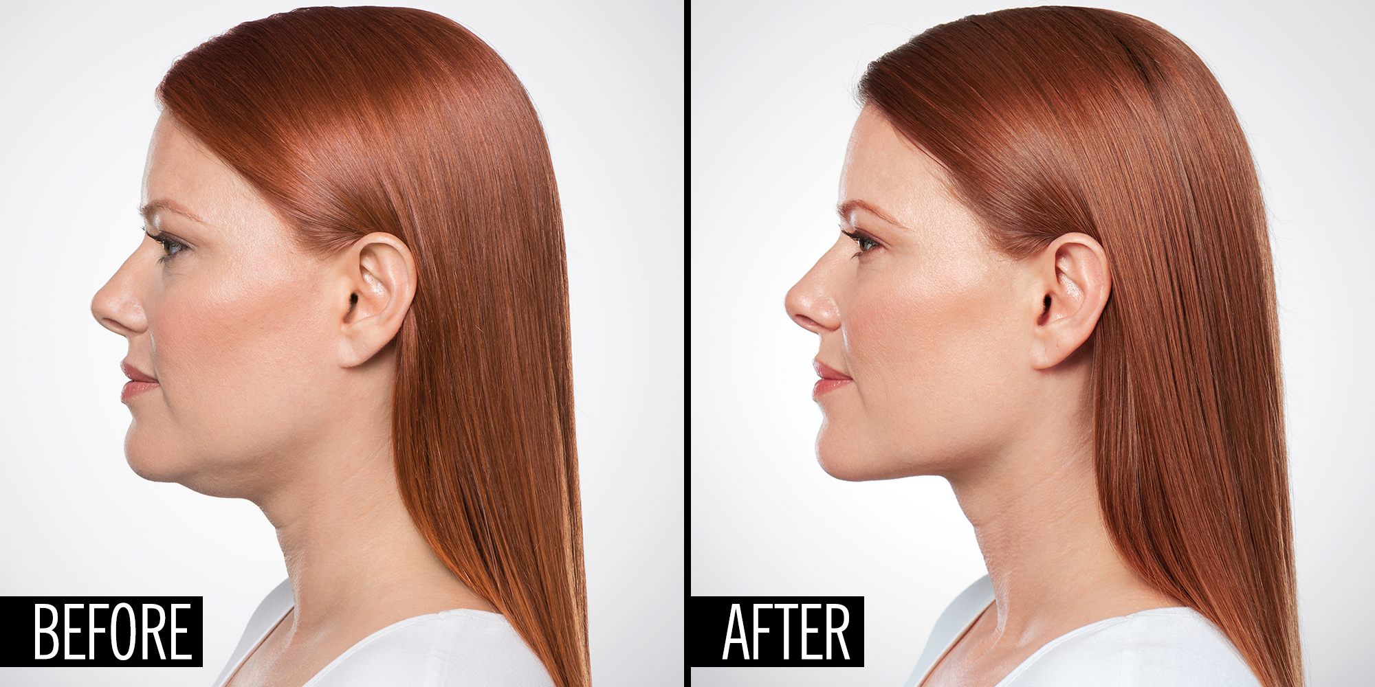 How A Plastic Surgeon Can Eliminate Your Double Chin With An Injection