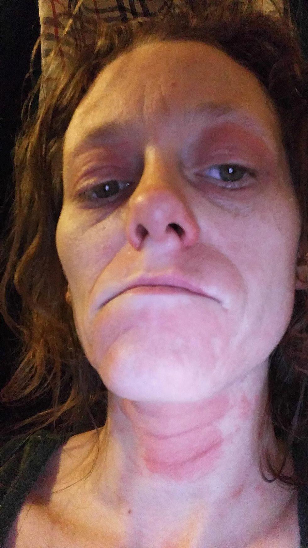 Neutragena facial peels