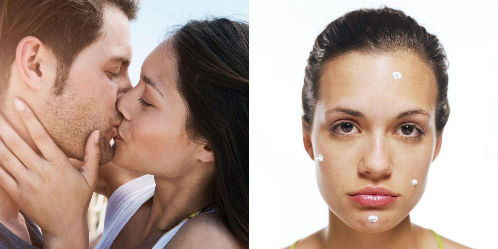 Zits pimples appear after sex