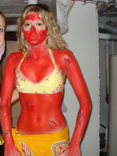 """<p>Kristi turned herself into a walking public service announcement as the """"Girl Who Spent Too Much Time Tanning."""" We're all about practicing safe sun, but her (fake) pus blisters are kinda brilliant. </p>  <p><p><b>Submitted by Kristi Leffler</b></p></p>"""