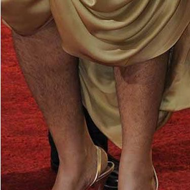 The Oscar-winner has the distinction of being the first celeb to make it onto a roundup of bad hair...for her leg hair.